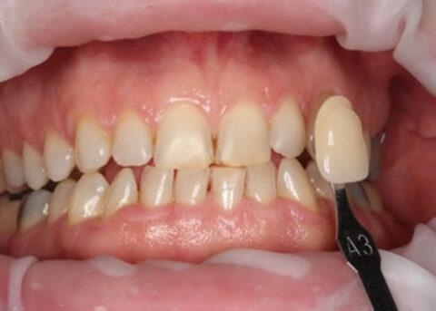 Teeth Whitening Before - Teeth zoom whitening