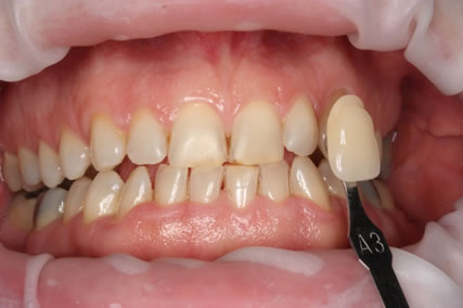 Teeth Whitening Before - Teeth zoom whitening
