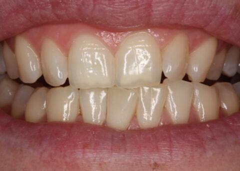 Teeth Whitening Before - Zoom teeth whitening