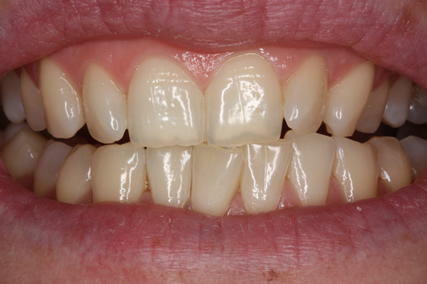 Teeth Whitening Before - Zoom teeth whitening