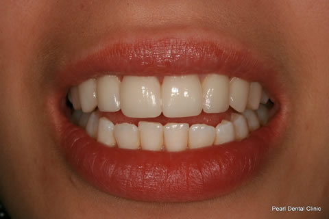 Teeth Whitening_Veneers After - Upper whitened_veneers teeth