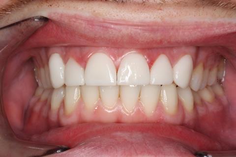 Worn_Chipped Teeth After - Full arch Emax Veneers teeth