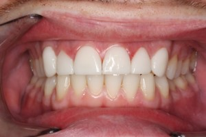 Worn_Chipped Teeth After - Full arch Emax Veneers teeth