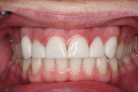 Worn_Chipped Teeth After - Full arch upper_Bottom
