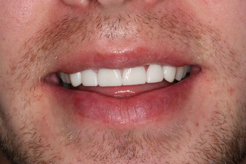 Worn_Chipped Teeth After - Full smile Emax Veneers