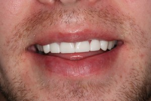 Worn_Chipped Teeth After - Full smile Emax Veneers