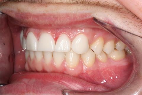 Worn_Chipped Teeth After - Left full arch Emax Veneers teeth