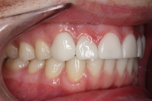 Worn_Chipped Teeth After - Right full arch Emax Veneers teeth