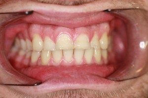Worn_Chipped Teeth Before - Full arch upper_Bottom