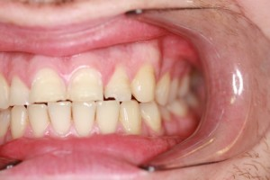 Worn_Chipped Teeth Before - Left full arch upper_Bottom
