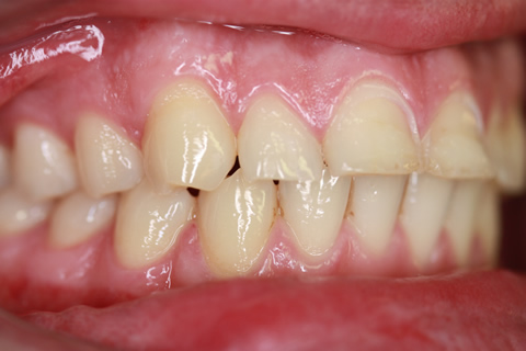 Worn_Chipped Teeth Before - Right full arch upper_Bottom