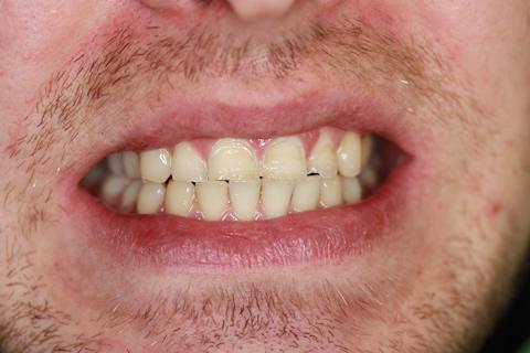 Worn_Chipped Teeth Before - Upper_Bottom