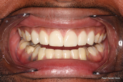Worn_Discoloured Teeth After - Full arch smile makeover_Emax veneer
