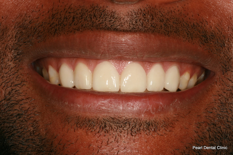 Worn_Discoloured Teeth After - Full smile makeover_Emax veneer