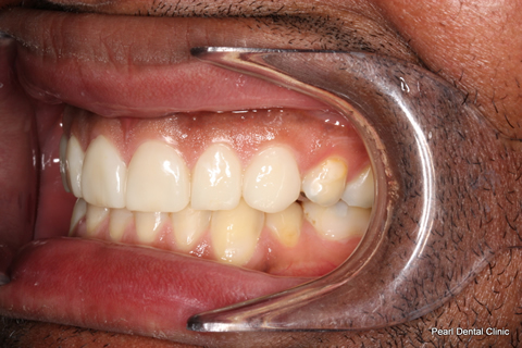 Worn_Discoloured Teeth After - Left full arch smile makeover_Emax veneer
