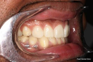 Worn_Discoloured Teeth After - Right full arch smile makeover_Emax veneer
