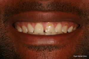 Worn_Discoloured Teeth Before - Front look worn_discoloured teeth