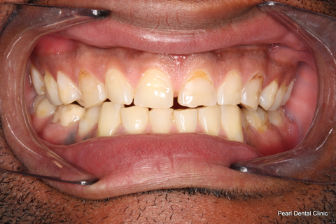 Worn_Discoloured Teeth Before - Full arch worn_discoloured teeth