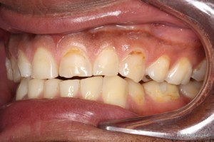 Worn_Discoloured Teeth Before - Left full arch worn_discoloured teeth
