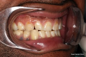 Worn_Discoloured Teeth Before - Right full arch worn_discoloured teeth