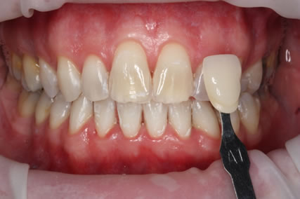 Zoom Teeth Whitening After- Zoom whitening