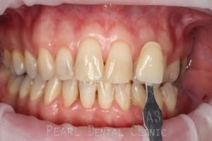 Zoom Teeth Whitening Before - Zoom whitening