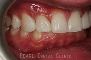 after composite veneers1