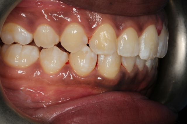 after invisalign right side view1