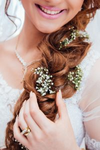 Invisalign is named the number one cosmetic treatment for brides