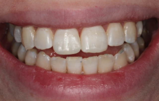 composite bondings on front teeth