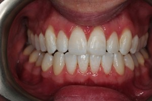 crooked teeth after invialign.jpg