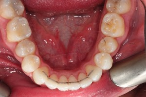 crooked teeth after invialign4.jpg