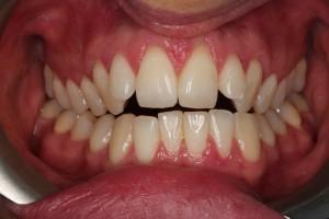 crooked teeth before invialign1.jpg