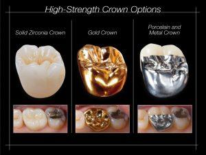 dental crown types