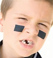 dental injuries in children