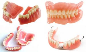 Image result for Denture repair