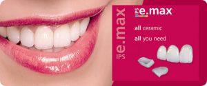 Emax Veneers Amp Dental Veneers By Pearl Dental Clinic In