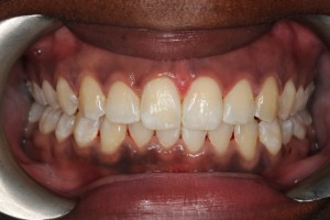 gap closing with invisalign1