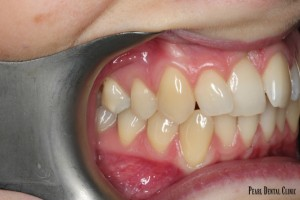 Invisalgin Buccal Right Before