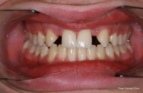 Dental bridge before after full upper lower arches missing teeth