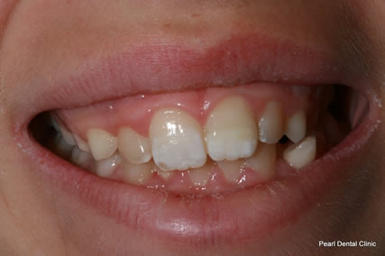Dental Trauma Before After - Week after complete treatment