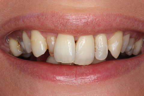 Tooth Crowding Before After - Front upper/lower teeth