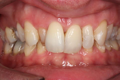 Tooth Crowding Before After - Full arch upper/lower teeth