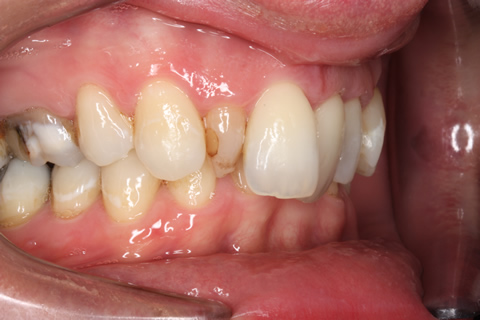 Tooth Crowding Before After - Right full arch upper/lower teeth