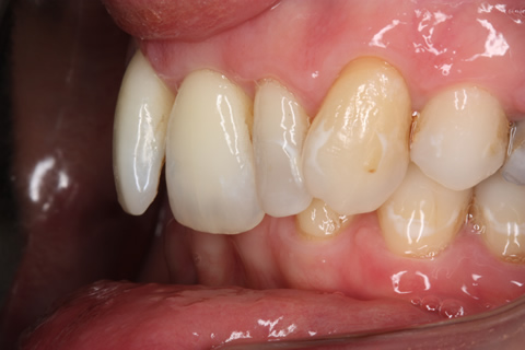 Tooth Crowding Before After - Left full arch upper/lower teeth