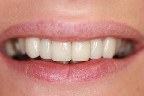 Tooth Crowding Before After - Front Emax veneers teeth