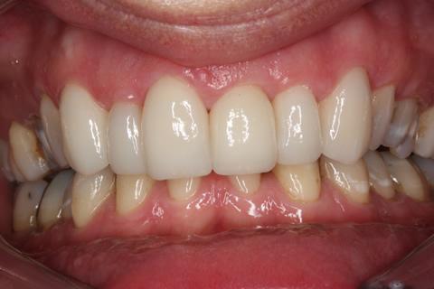 Tooth Crowding Before After - Full upper/lower Emax veneers teeth