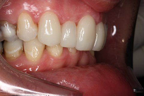 Tooth Crowding Before After - Right full upper/lower Emax veneers teeth