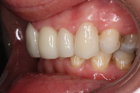 Tooth Crowding Before After - Left full upper/lower Emax veneers teeth