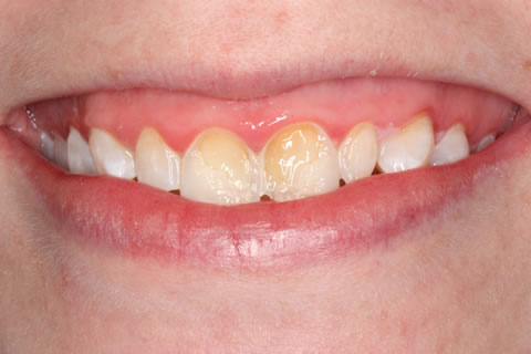 Emax Porcelain Veneers Before After - Discoloured upper teeth